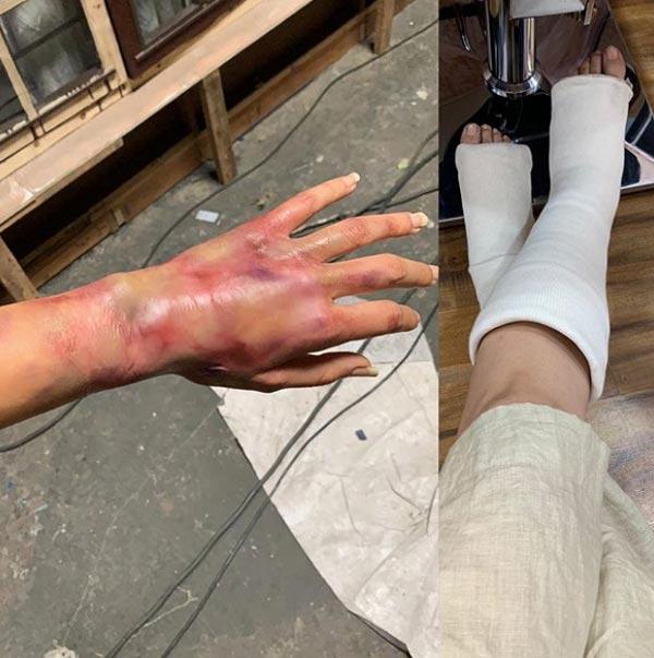 Taapsee Pannu Bruised Hands