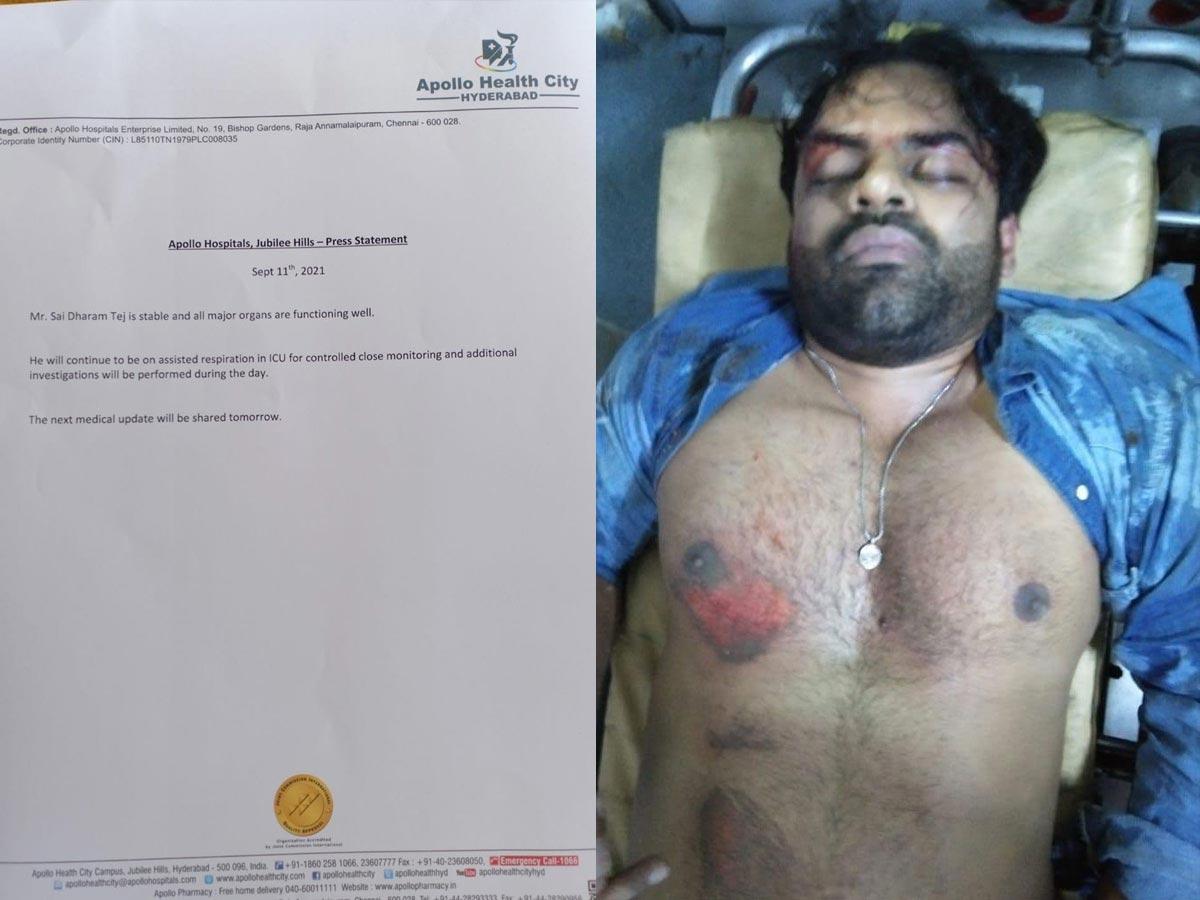 mega hero,sai dharam tej,sai tej health bulletin  సాయి ధరమ్ తేజ్ తాజా హెల్త్ బులిటెన్